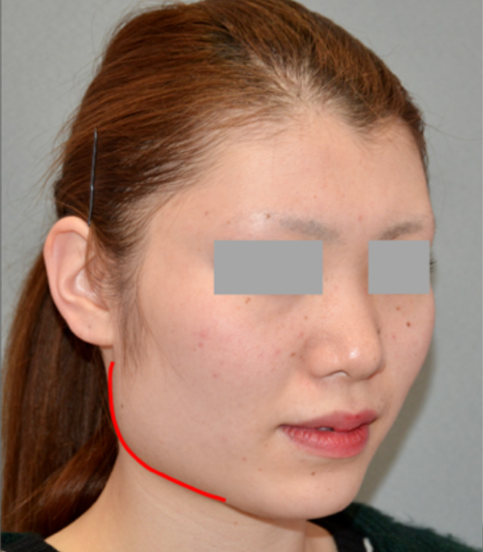 下顎角部の張り出し(隆起)が目立ち、顔の余白が広い方