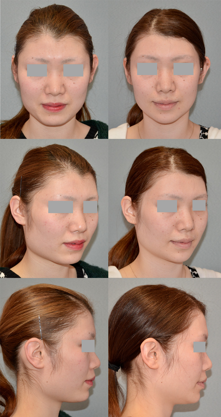 エラ施術の症例写真